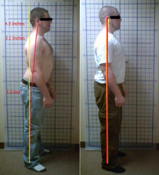 Chiropractic Hampton NH Case Study